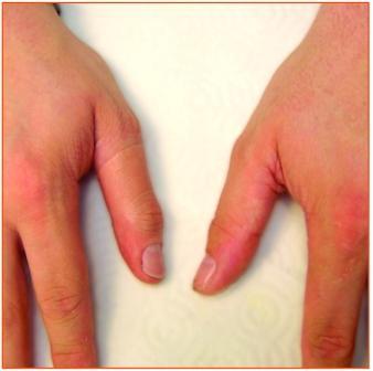 Amputation and Prosthetics Dr. Neal Labana Orthopedic Hand Surgeon Dr. Kung Orthopaedic Hand Surgeon Dr. Venkat Seshadri M.D. Orthopaedic Surgeon Hips & Knees
