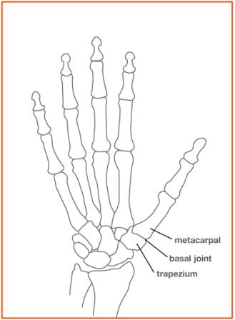 Arthritis: Base of the Thumb